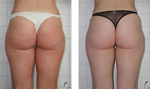 Before & After Cellulite smooting