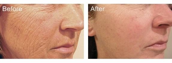 Skin Refining Anti aging
