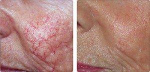 Vascular Lesions